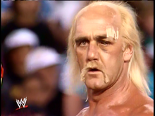 Hulk Hogan black eye