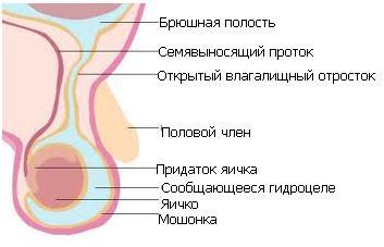 narushenie-obliteratsii-vlagalishniy-otrostok