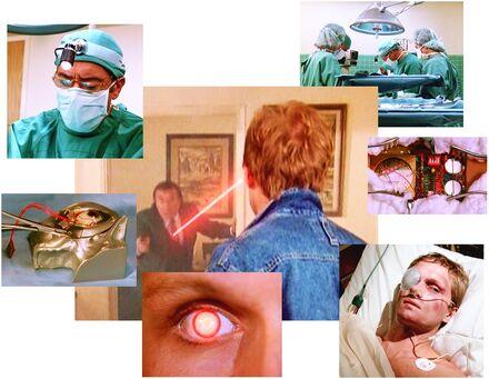 Bionic operation Michael