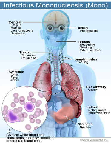 File:2011-infectious-mononucleosis.jpg