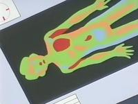 Archivo:EP167 Radiografía del paciente.jpg