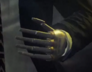 Travis prosthetic limb