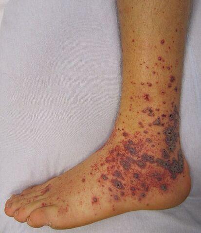 File:Vasculitis.jpg