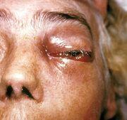 Periorbital fungal infection