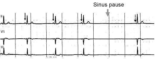 File:Sinus pause.png