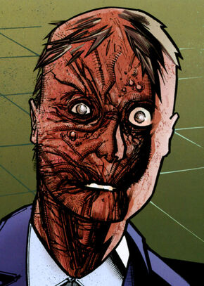 File:Ludlow scarred.jpg