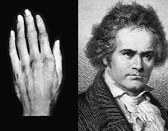 File:Beethoven and his left hand.PNG