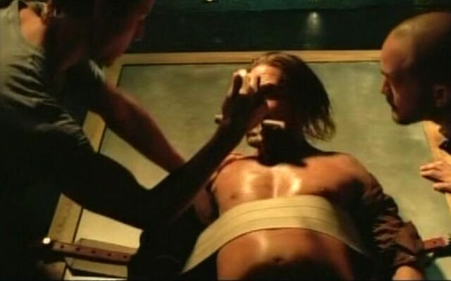 File:Needle in chest sawyer.JPG