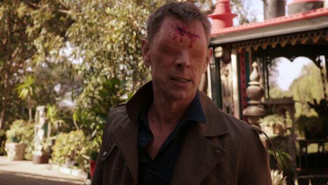 File:Gordon-cut-forehead.jpg