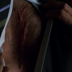 Coulson's scar