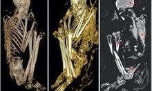 Three-dimensional-mummy