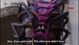 HSA Shibuya-Gold-Teeth