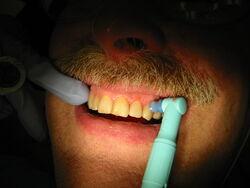 Tooth polishing 9332