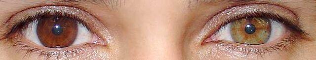 File:Heterochromia.jpg