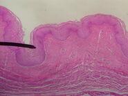 Vagina (mucosa)
