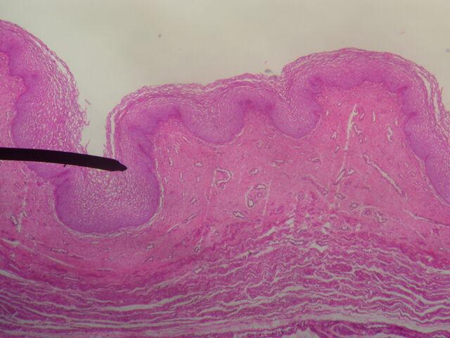 File:Vagina (mucosa).JPG