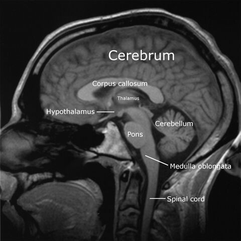 File:Labeledbrain-english.jpg