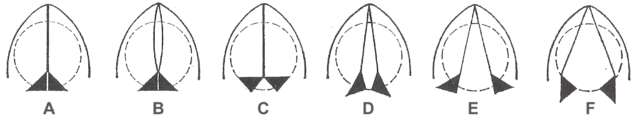File:Glottis positions.png
