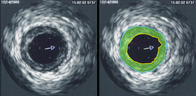 File:IVUS of CAD.png
