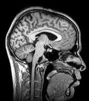 Sagittal brain MRI