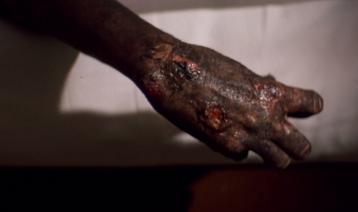 File:Jim goose's burnt body.jpg