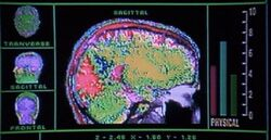 Rocky brain condition