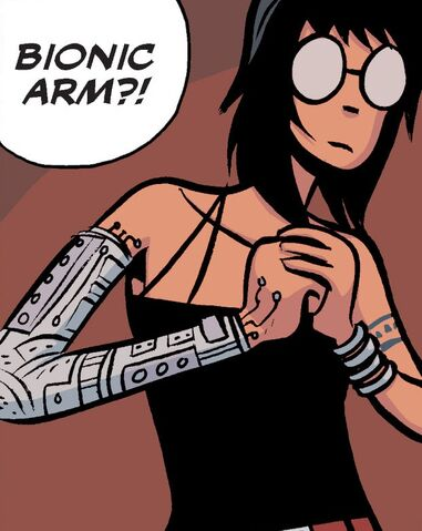 File:Vol-3-bionic-arm.jpg