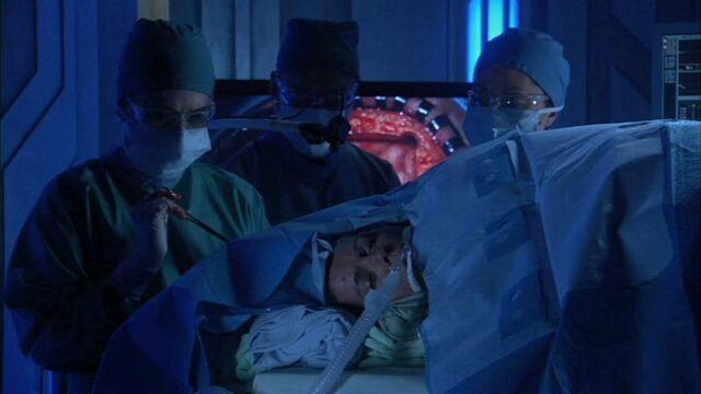 File:Decomprssive craniectomy.jpg