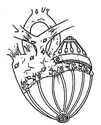 File:Q-2 artificial heart.jpg