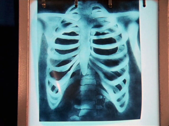 File:ThirdDoctor-ChestXRay.jpg