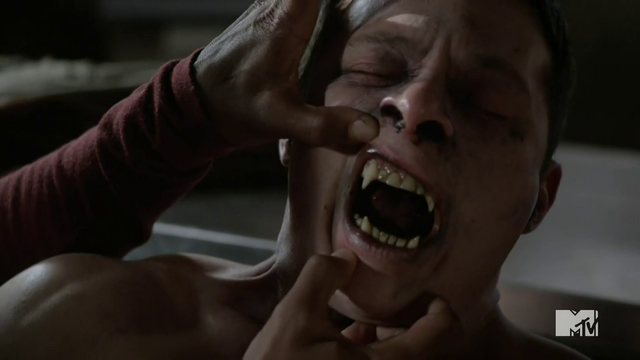 Datei:Teen Wolf Season 4 Episode 7 Weaponized sick beta.png