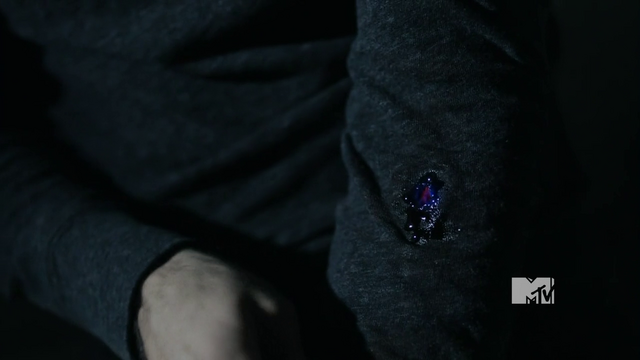 File:Derek infected with wolfsbane bullet.png
