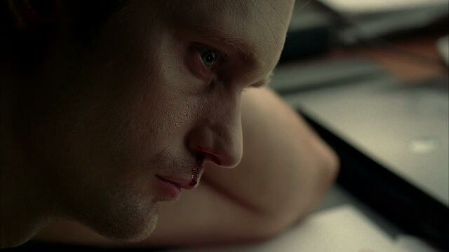 File:3x09 -eric has the bleeds from lack of sleep 2.jpg