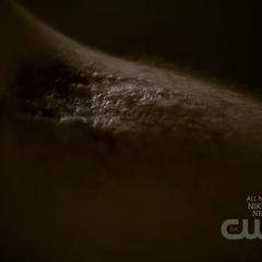 Damon bitten by Tyler
