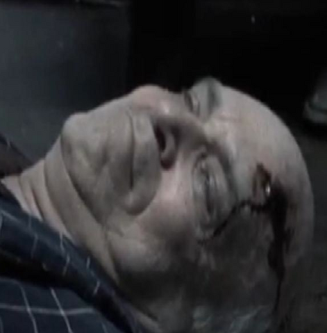 File:Elderly Male Patient.png