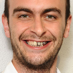 File:Joe-Gilgun.jpg