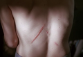 2x07 scar back.png