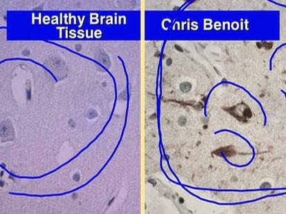 File:Benoit brain.jpg