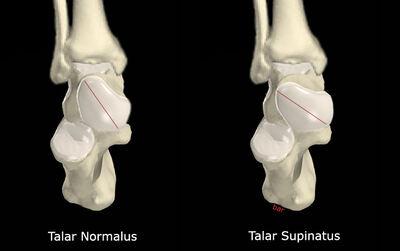 Talar Supinatus vs No Talar Supinatus