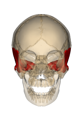 frontal plane divergence of pupils - sign for sphenoid torsion, Human Body