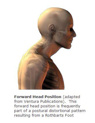 File:Forward head position.jpg