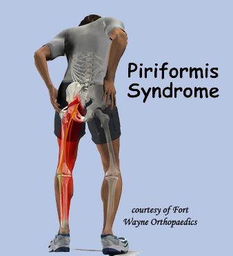 File:Piriformis Syndrome Ref Pain Distribution.jpg