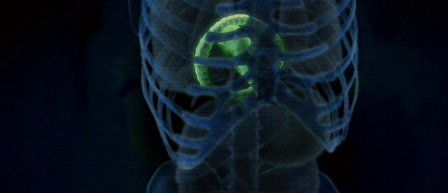 File:Chestburster X-ray.png