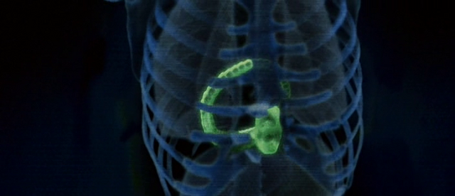 File:Chestburster X-ray (2).png