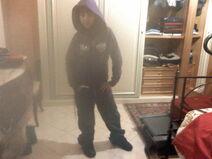 Mi sorella zecca