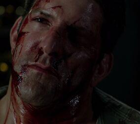 301 Bloodied Man