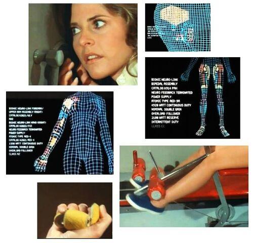 File:Bionic operation Jaime.jpg