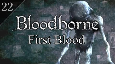 Bloodborne First Blood (22) - Research Hall & Living Failures