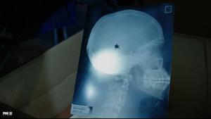 X-Ray Radik
