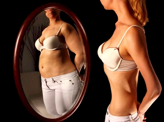 File:Anorexia.jpg